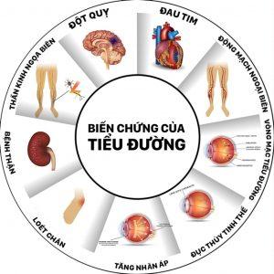 biến chứng tiểu đường CÁC BIẾN CHỨNG CỦA BỆNH TIỂU ĐƯỜNG